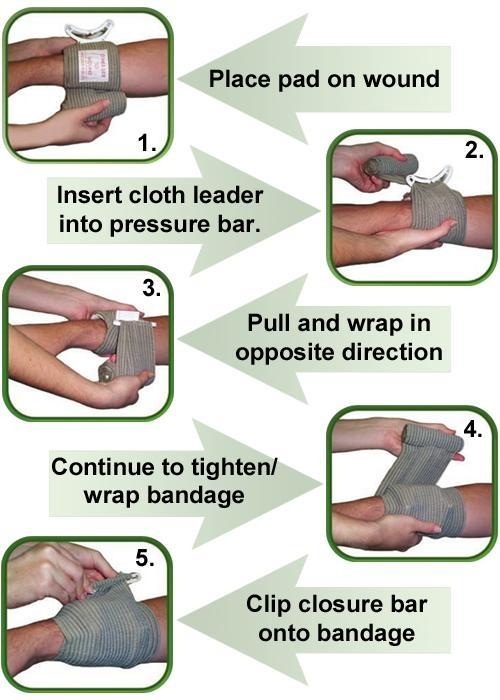 Israeli Bandage 3