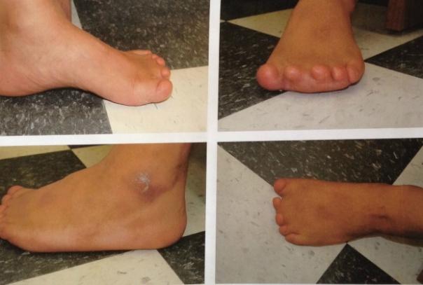 grassy-narrows-mercury-feet